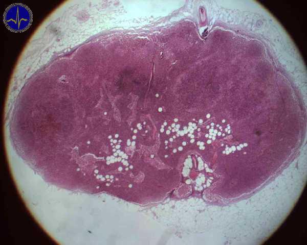 Lymfaticka uzlina