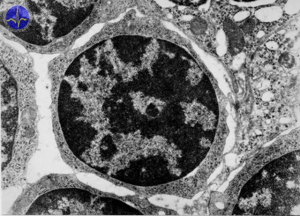 Lymfocyt