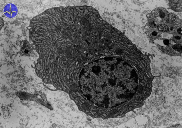 Plazmatická buňka