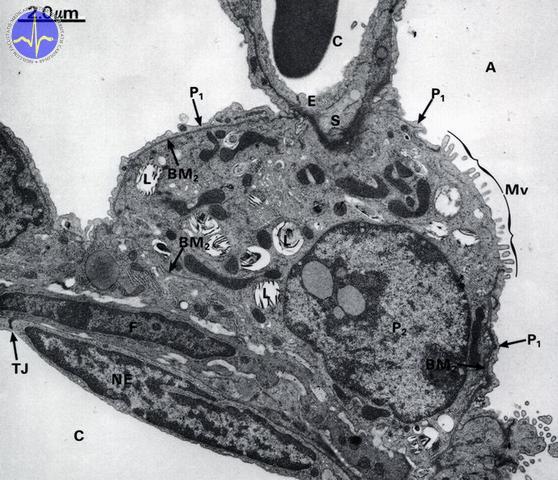 Pneumocyty