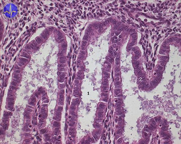 endometriálni zlaza v sekrecni fazi